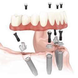 dente canal aberto