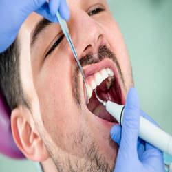 preço de canal de dente