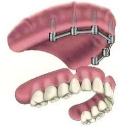 prótese fixa dentaria