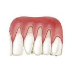 quanto custa prótese dentaria fixa