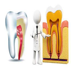 dente com carie profunda