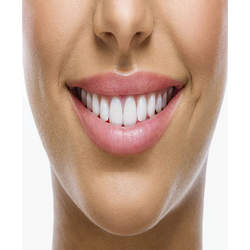 prótese dentaria acrílica preço