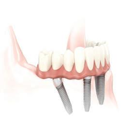 próteses dentarias fixas
