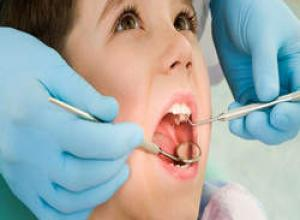 canal no dente da frente