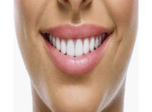 prótese dentaria com grampo preço