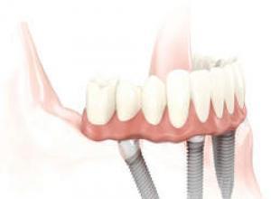 prótese dentaria removível preço